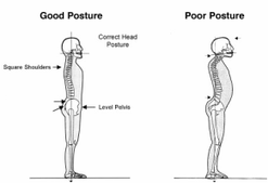 Correct your posture with ChiroCure Chiro care