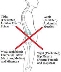 lower cross syndrome treatment