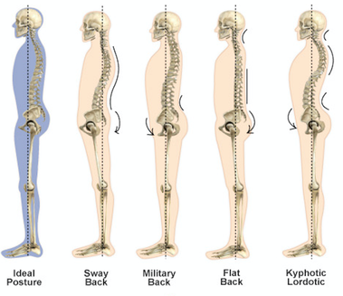 posture correction chirocure clinic