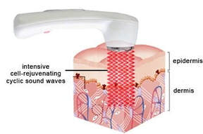 ultrasound therapy chirocure