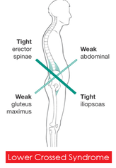 upper cross syndrome chiropractic care